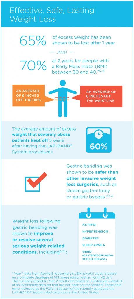 Lap-Band Statistics Infographic